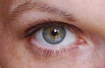 Un yeux bleu et un vert